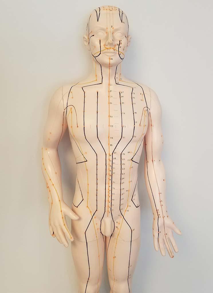 Akupunktur Dr. med. Wencke Lindwedel in Neustadt